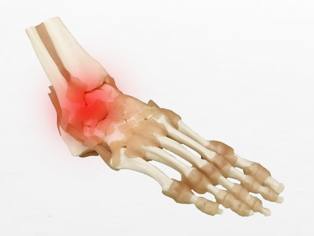 Symptoms and pain of aftereffects of sprain